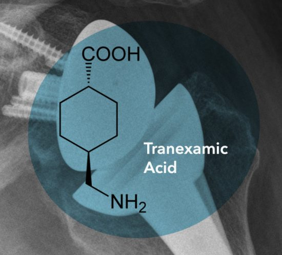 TXA Study (Systemic Tranexamic Acid in Shoulder Arthroplasty
